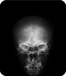 Image of an x-ray of a skull