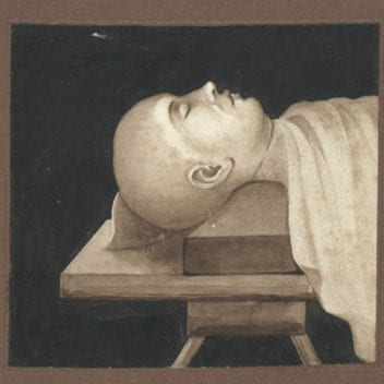 depiction of a body lying on a surgeon's table